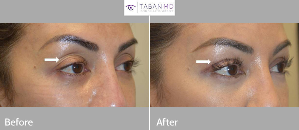 42 year old beautiful half-Asian half-caucasian woman, with loose upper eyelid skin and deflation (fat loss), underwent upper blepharoplasty (eyelid lift) and upper eyelid filler injection. Note more youthful eyes in after photo.