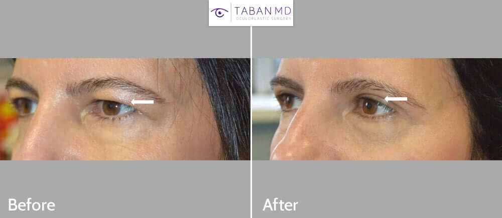 48 year old female with hooded saggy upper eyelids underwent upper blepharoplasty (eyelid lift). Before and 1 month after eyelid surgery photos are shown.