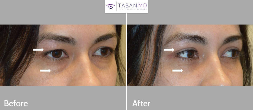 Young woman underwent upper blepharoplasty for hooded upper eyelids plus lower blepharoplasty (transconjunctival technique with fat repositioning to tear trough area).