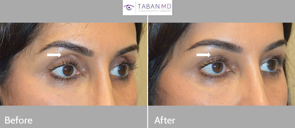 Young woman underwent upper eyelid filler injection to improve sunken hollow upper eyelids.