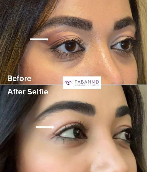 Young woman underwent upper blepharoplasty (to correct loose saggy upper eyelid skin folds) and lacrimal gland repositioning (to correct lacrimal gland prolapse) and upper eyelid filler injection (to correct upper eyelid hollowness). Her before and selfie after photos are shown.