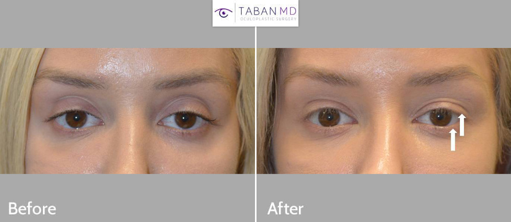 Young beautiful woman, with tired sad eye appearance, underwent canthoplasty and internal droopy upper eyelid ptosis surgery, to create more rested, almond shaped eyes. This can be considered almond eye surgery or natural cat eye surgery.