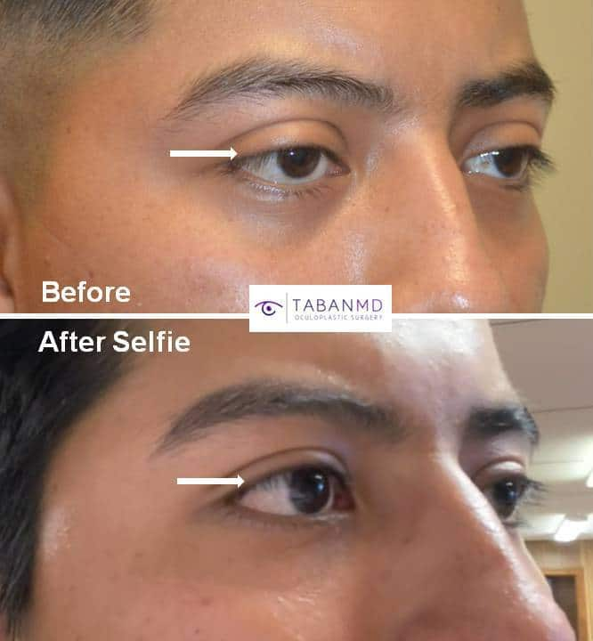 Young man with significant congenital droopy upper eyelid ptosis underwent upper eyelid ptosis repair. His before and after selfie photos are shown.