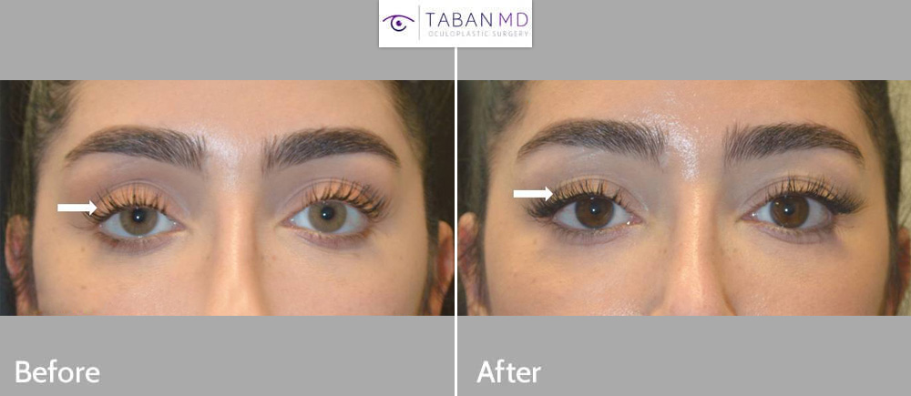 27 year old beautiful young woman underwent scarless internal upper eyelid ptosis surgery to correct congenital asymmetric droopy upper eyelids with tired eye appearance. Note more rested youthful eyes in after photo.