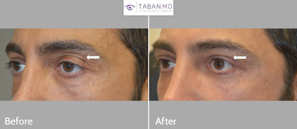 Young man underwent left upper eyelid filler injection and left droopy upper eyelid ptosis surgery. Before and 1+ year after results are shown.