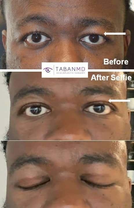 African American gentleman with asymmetric upper eyelid hooding underwent male upper blepharoplasty. His before and 2 months after selfie photos are shown. Note the scar is hidden in the crease and subtle and it will get even better with time.