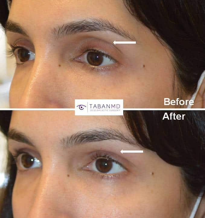 Beautiful woman with rounded eye appearance due to upper eyelid fat loss (hollowness) underwent upper eyelid filler injection. Before and immediately after injection photos are shown. Note more almond shaped and youthful eye appearance.