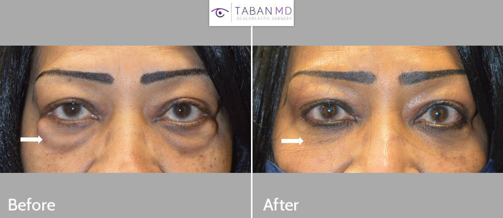 73 year old African American woman with huge under eye fat bags underwent scarless transconjunctival lower blepharoplasty. (She declined skin removal.)