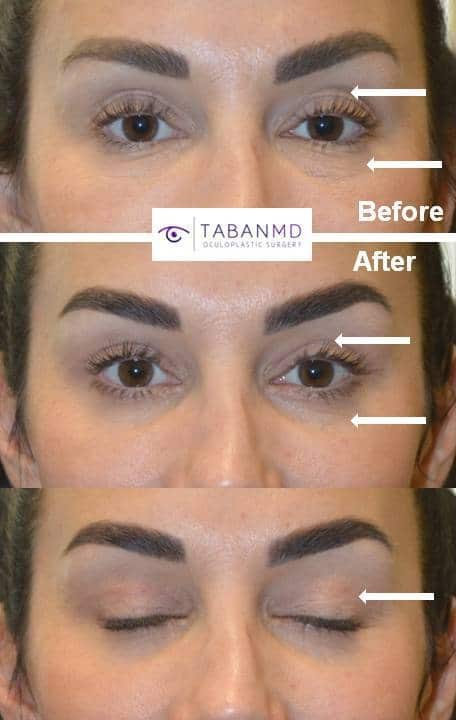 40 year old woman, with tired eye appearance due to eyelid aging, underwent cosmetic upper blepharoplasty, lower blepharoplasty (transconjunctival technique with skin pinch), droopy upper eyelid ptosis surgery, and upper eyelid filler injection. Note more youthful eye appearance. Note the scar is healing nicely and hidden in the natural upper eyelid crease.