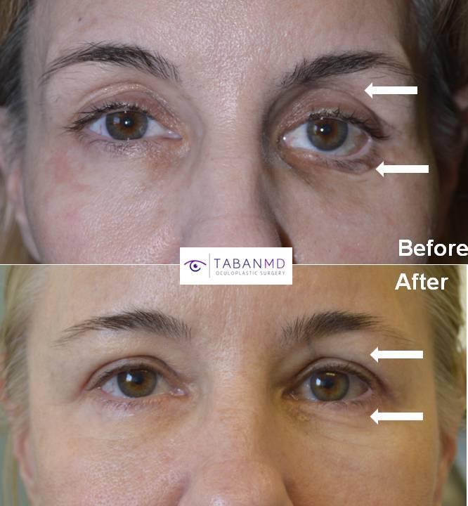 orbital fracture repair lower eyelid retraction surgery