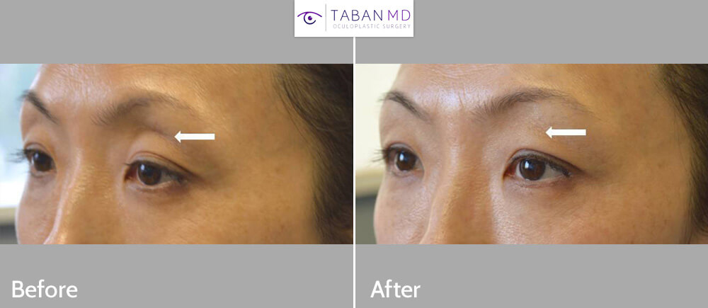 Young Asian mom, with deflated sunken upper eyelids underwent upper eyelid filler injection. Note improvement of upper eyelid hollowness with more youthful eye appearance.