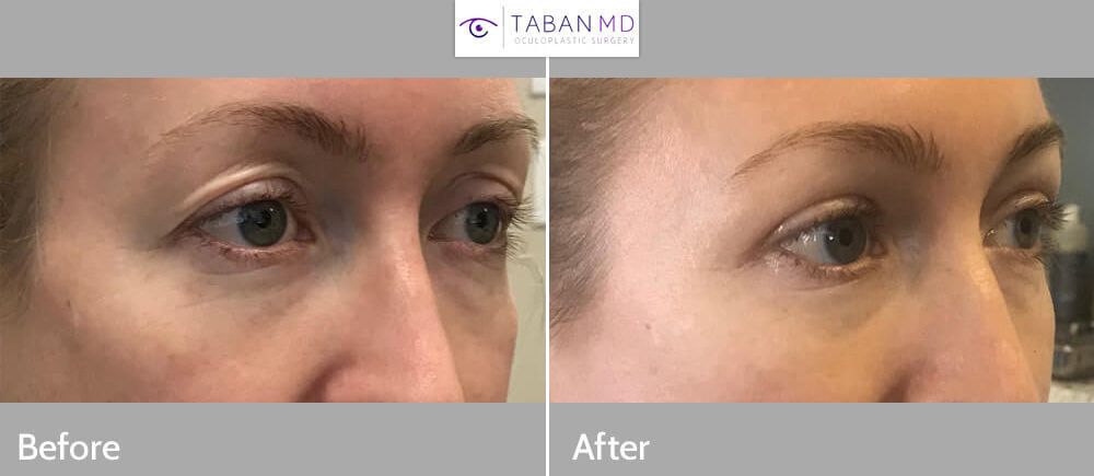 Young beautiful woman with loose upper eyelid skin and upper eyelid deflation and hollowness due to fat loss, underwent combined upper blepharoplasty and upper eyelid filler injection. Note more youthful rested eye appearance.