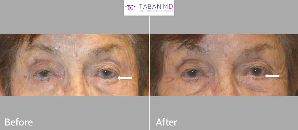 75+ year old woman underwent left lower eyelid entropion surgery to correct eyelid that was turning in with lashes rubbing against the eyeball. Before and 3 months after eyelid surgery photos are shown.