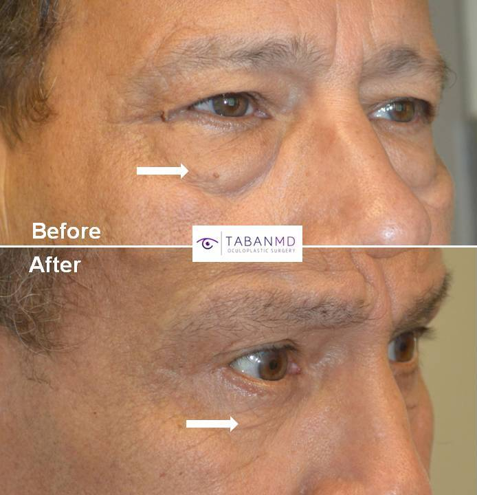 70 year old male, with puffy under eyes due to age-related orbital fat prolapse (under eye fat bags) underwent lower blepharoplasty (transconjunctival with eye fat repositioning and skin pinch), along with upper blepharoplasty. Before and 2 years after cosmetic eyelid surgery photos are shown.