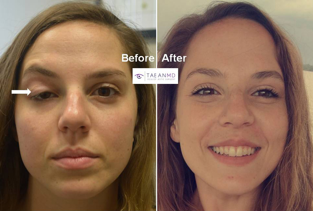 Young beautiful woman underwent complex revision right upper eyelid ptosis repair (after several previous failed operations by other surgeons).