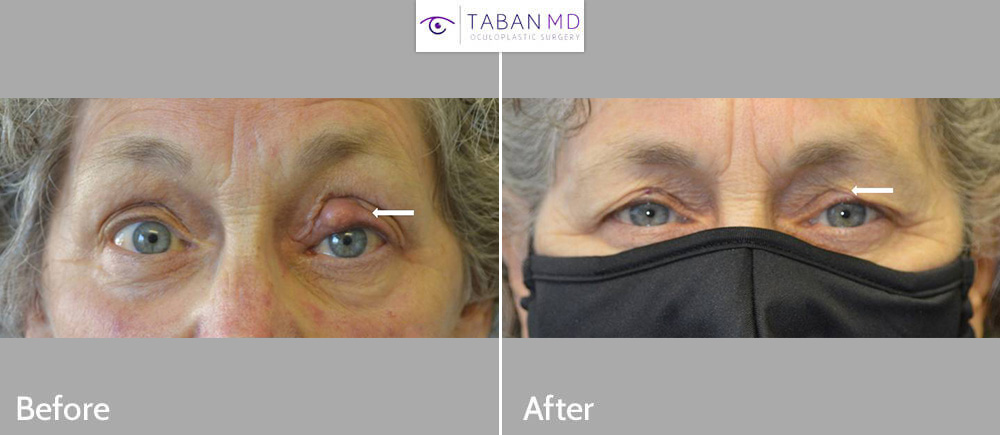 70+ year old female, with large left upper eyelid stye (chalazion) underwent chalazion excision.