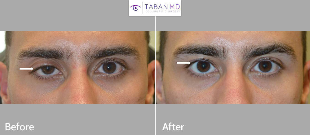 Young man, with significant droopy right upper eyelid (ptosis) underwent scarless internal droopy eyelid ptosis surgery.