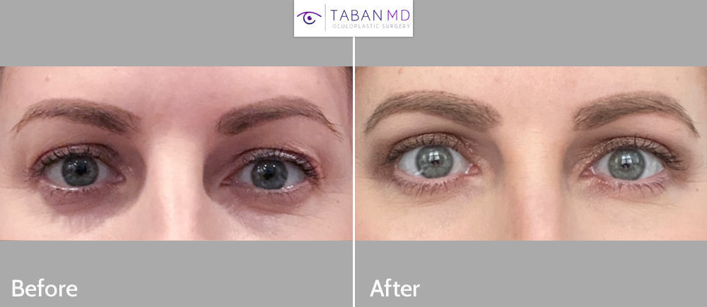 37 year old female underwent cosmetic upper blepharoplasty to improve upper eyelid aging with saggy loose skin.