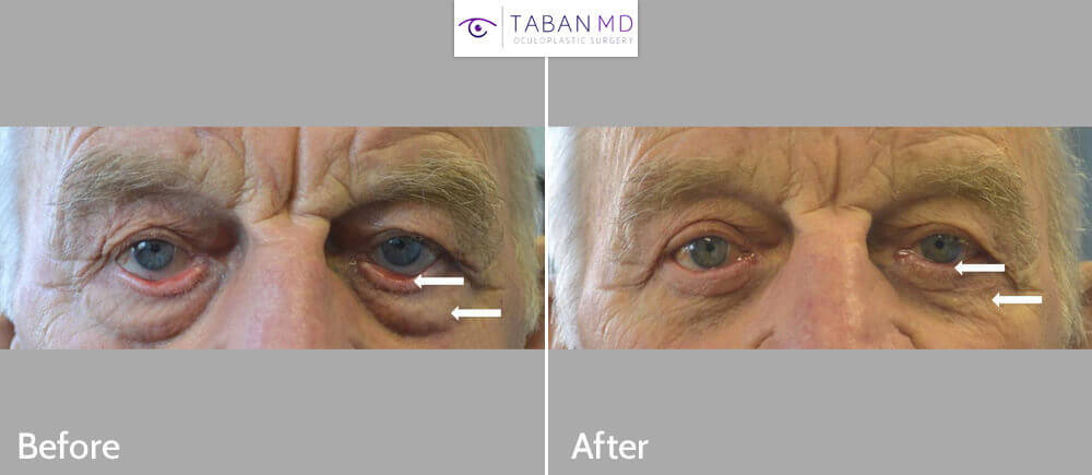 80+ year old male, with significant lower eyelid ectropion underwent reconstructive lower eyelid ectropion surgery with skin graft, plus cosmetic lower blepharoplasty.