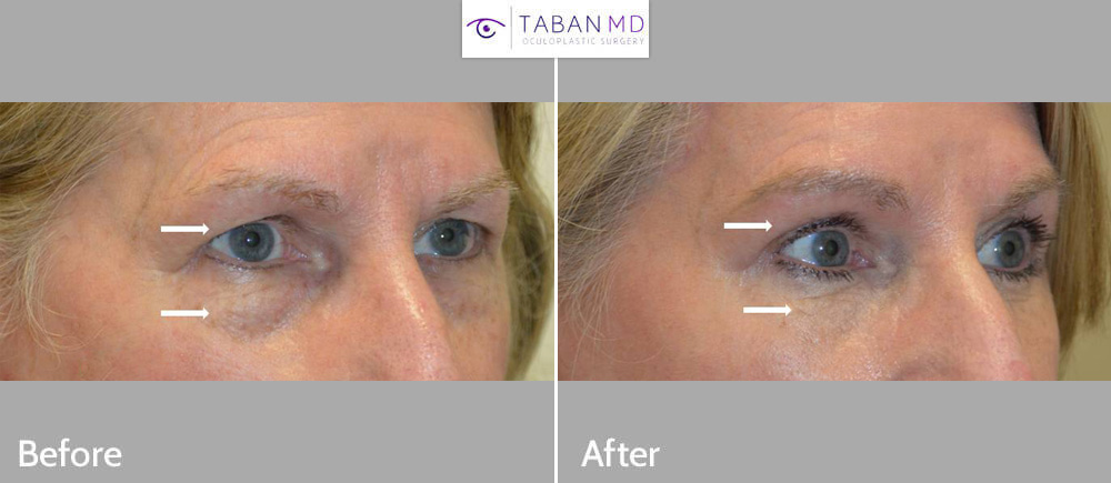 60+ year old woman, underwent quad-blepharoplasty (upper blepharoplasty and lower blepharoplasty). Note more rested, youthful eye appearance.