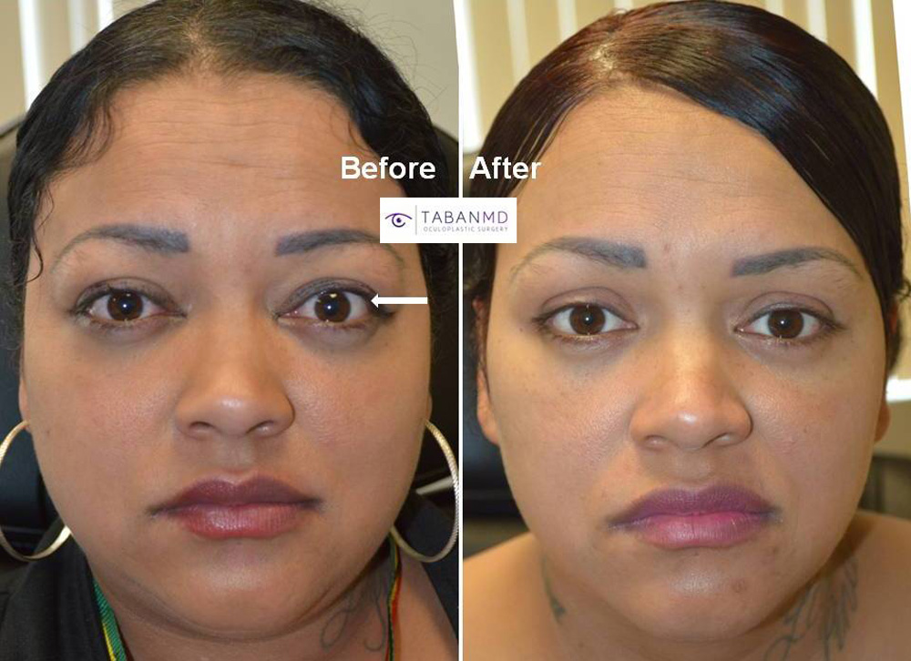 35 year old female, with Graves thyroid eye disease, causing bulging eyes and eyelid retraction and puffy eyelids, underwent combined scarless orbital decompression and blepharoplasty.