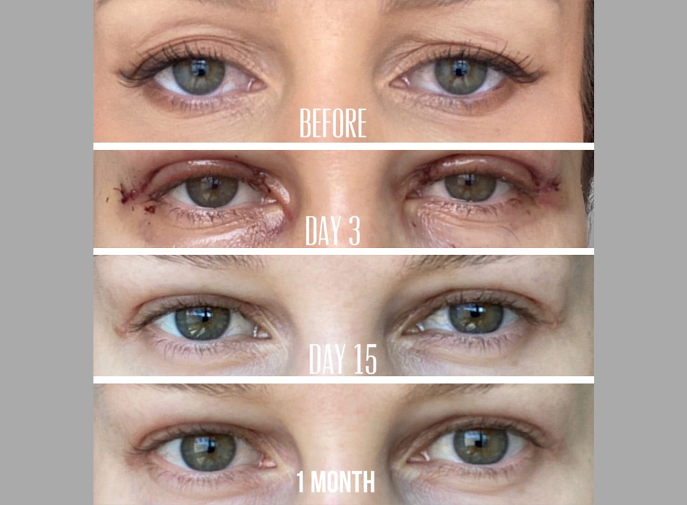 38 year old female, with saggy and deflated aged upper eyelids, underwent combined upper blepharoplasty and upper eyelid filler injection. Note quick healing with more youthful eye appearance.