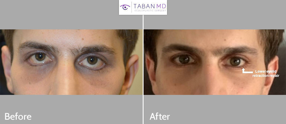 Young man, suffering from severe lower eyelid retraction after botched infraorbital rim implant placement (by another surgeon using external eyelid incision) underwent complex lower eyelid retraction repair which included both internal alloderm spacer graft and external skin graft.