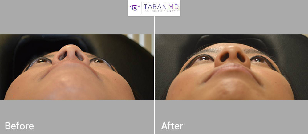 Young beautiful Asian female, with congenital protruding eyeballs, underwent scarless orbital decompression surgery with quick healing. Her before and 1 month after bulging eye surgery photos are shown.