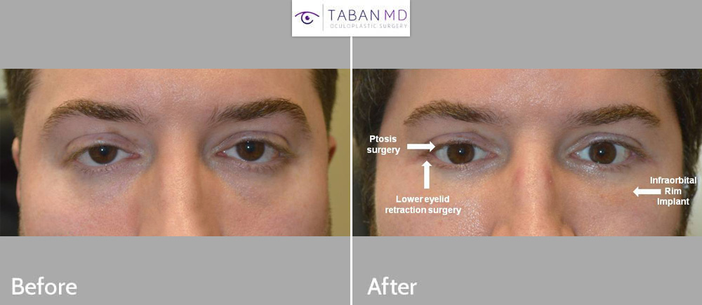 Young man, with congenital droopy lower eyelids and droopy upper eyelids and bulging eyes, underwent lower eyelid retraction surgery with canthoplasty (almond eye surgery), droopy upper eyelid ptosis surgery, scarless orbital decompression bulging eye surgery, and infraorbital rim silicone implant. Note change from negative canthal tilt (downturned eyes) to positive canthal tilt (upturned eyes).