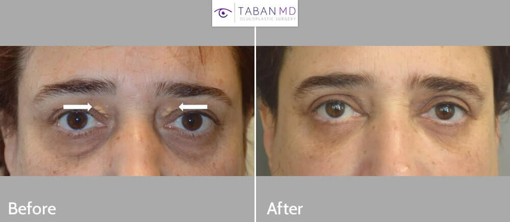 Middle age woman underwent eyelid cholestrol deposit (xanthalasma) removal plus upper and lower blepharoplasty (quad-blepharoplasty) under local anesthesia. Before and 3 months after eyelid surgery photos are shown.