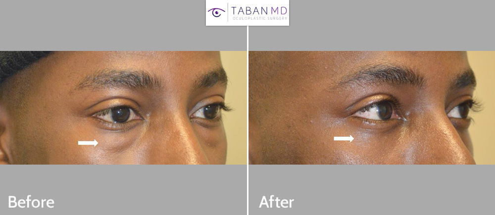 Young African American male underwent scarless lower blepharoplasty to improve under eye fat bags.