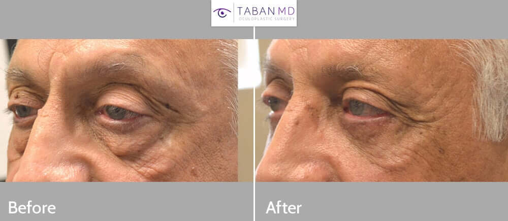 70 year old male, with significant under eye fat bags, hollowness with dark circles, and skin laxity, underwent transconjunctival lower blepharoplasty with eye fat bags repositioning and skin pinch. Before and 2 months after cosmetic eyelid surgery photos are shown. Note the upper eyelids were not operated on. He also has small area of cheek festoons that was not treated.