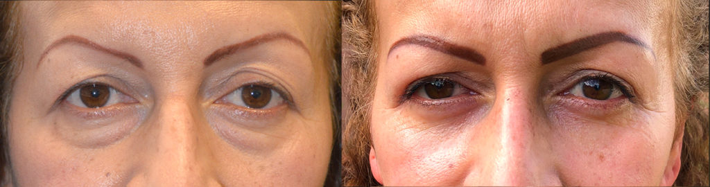 51 year old Hispanic female, complained of looking tired and older due to under eye fat bags with dark circles and loose upper lid skin. She underwent lower blepharoplasty (transconjunctival with fat repositioning, skin pinch) and upper blepharoplasty. Before and 2 months after cosmetic eyelid surgery photos are shown. (The after photo is selfie.)