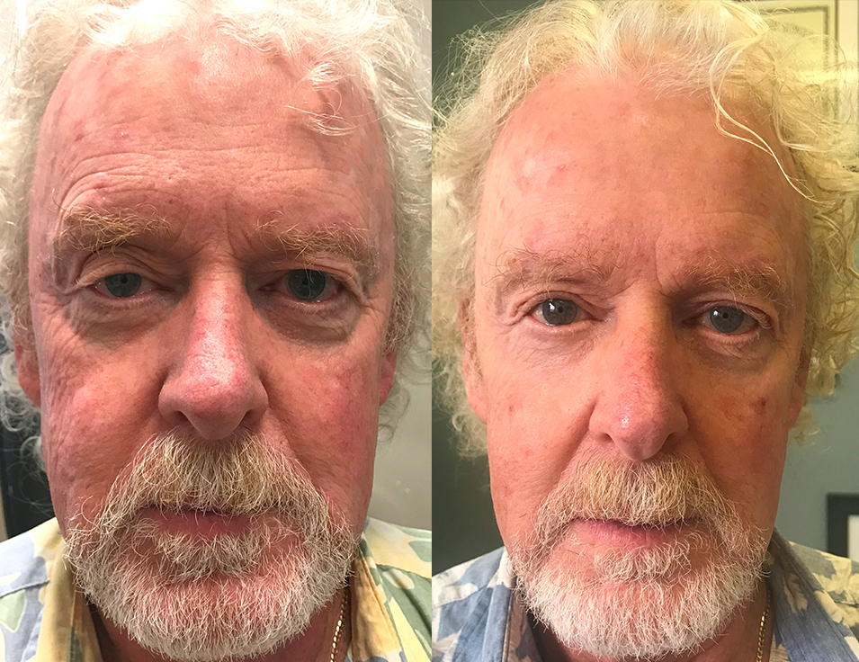 66 year old male, with uneven eyes due to droopy right upper eyelid (ptosis) under went right upper eyelid ptosis correction plus bilateral upper blepharoplasty. Before and 2 months after eyelid surgery photos are shown.