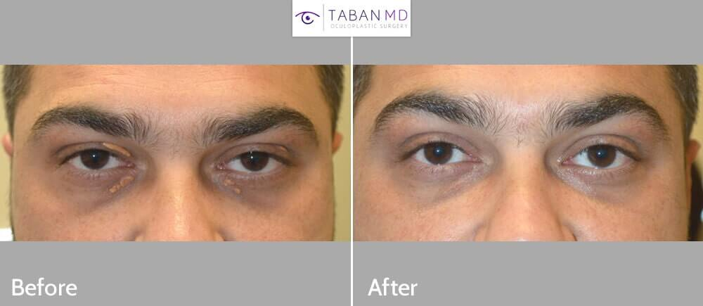 34 year old male, underwent eyelid surgery to remove multiple eyelid xanthalasma (eyelid cholestrol deposits). Before and 2 months after eyelid cholesterol deposits removal photos are shown.