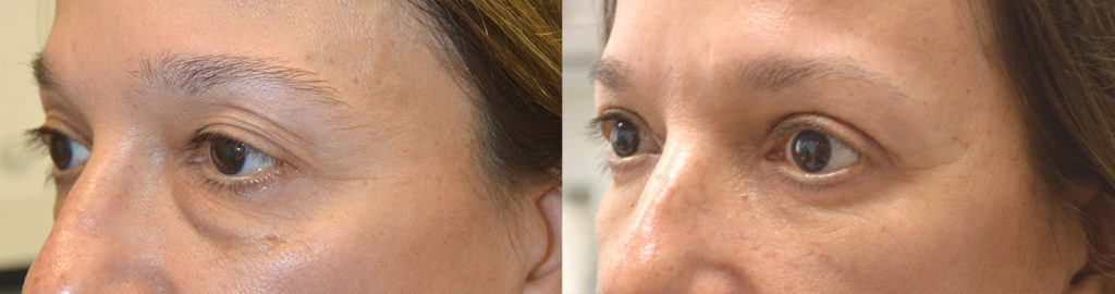 50+ year old female, looking tired and older due to under eye fat bags and dark circles and upper eyelid saggy loose skin, underwent quad-blepharoplasty: upper blepharoplasty (eyelid lift) and lower blepharoplasty (transconjunctival technique with fat bags redistribution and skin pinch). Before and 3 months after eye plastic photos are shown.