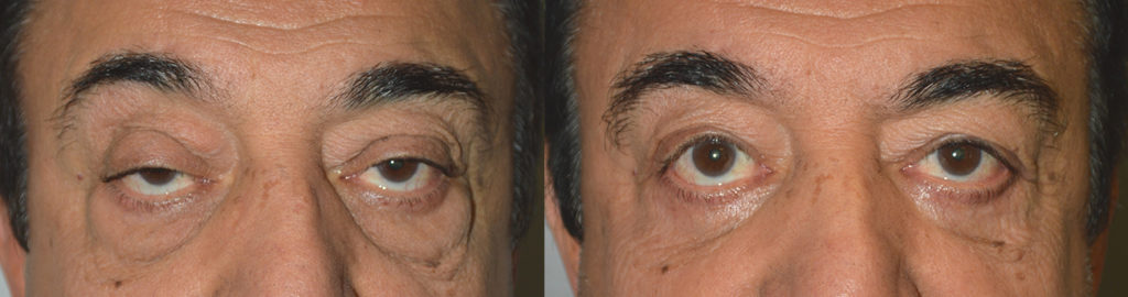 70+ year old male, with significant asymmetric droopy upper eyelids and under eye puffiness (eye fat bags) with skin laxity and dark circles, underwent droopy upper eyelid ptosis correction, upper blepharoplasty (eyelid lift) plus lower blepharoplasty (transconjunctival technique with fat bags repositioning and skin pinch). Before and 3 months after eyelid surgery photos are shown.