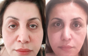 46 year old female from Netherlands, with lower eyelid retraction after botched lower blepharoplasty in Netherlands inherited bulging eyes and droopy upper eyelid (ptosis), underwent corrective revision lower eyelid retraction surgery, orbital decompression surgery for bulging eyes, and droopy upper eyelid ptosis surgery. Before and 3 months after cosmetic eye plastic surgery selfie photos are shown.
