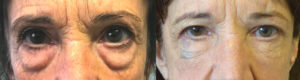70 year old woman, looking tired and older due to under eye fat bags and dark circles, underwent transconjunctival lower blepharoplasty with fat bags repositioning and skin pinch followed later by cheek filler injection. Before and 3 months after cosmetic eyelid surgery photos are shown.