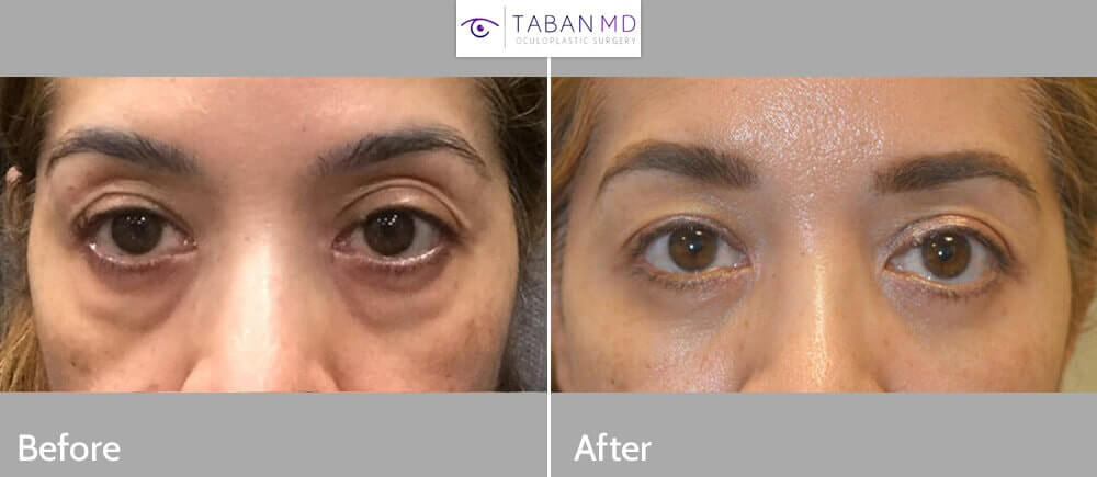 48 year old female, complained of looking tired due to persistent puffy eyes (due to under eye orbital fat prolapse, eye bags) and dark circles. She underwent transconjunctival lower blepharoplasty with fat bags redistribution and skin pinch removal. Before and 3 months after cosmetic eyelid surgery photos are shown.