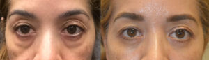 """48 year old female, complained of looking tired due to persistent puffy eyes (due to under eye orbital fat prolapse, """"eye bags"""") and dark circles. She underwent transconjunctival lower blepharoplasty with fat bags redistribution and skin pinch removal. Before and 3 months after cosmetic eyelid surgery photos are shown."""