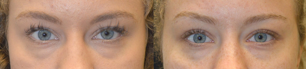 21 year old young woman complained of eye asymmetry with left eye appearing smaller due to congenital droopy left upper eyelid (ptosis). She underwent scarless internal left upper eyelid ptosis repair. Before and 2 months after eyelid ptosis surgery photos are shown. Note improved eye symmetry.