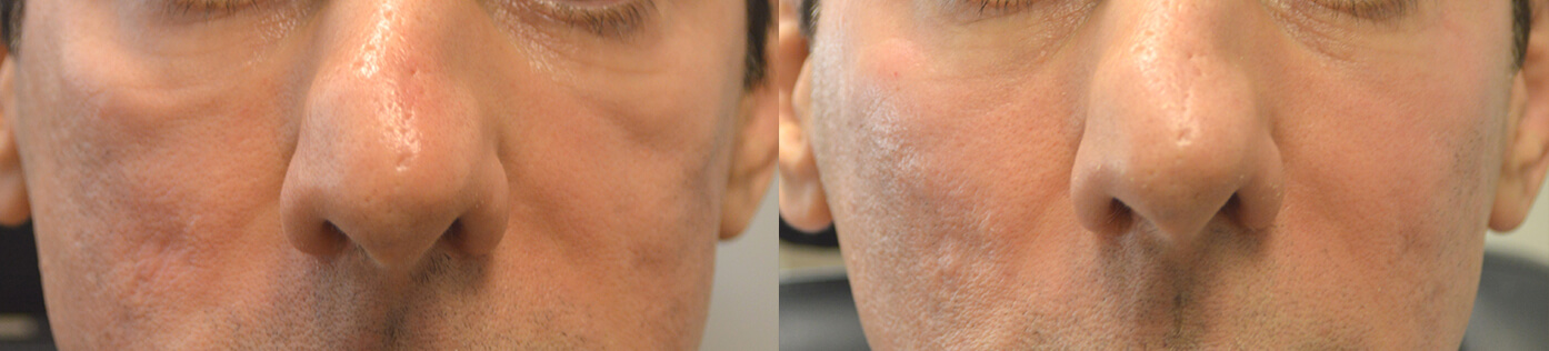 Middle age man, with thin face and festoons, received cheek and under eye filler injection. Note improved under eye and cheek contours with camouflage of the festoons.