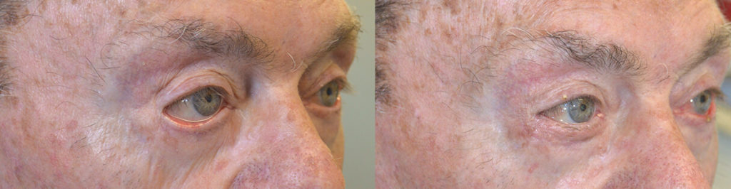 84 year old male, with severe right lower eyelid ectropion due to previous botched lower eyelid surgery and sun damage, underwent right lower eyelid ectropion repair with skin graft. Before and 3 months after reconstructive eye plastic surgery photos are shown.