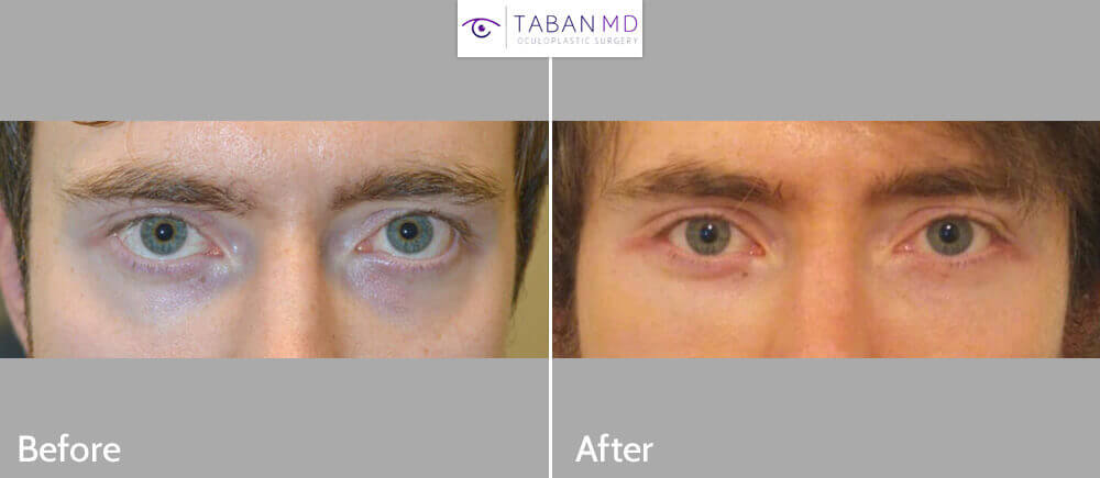 Young man, complained of inherited lower eyelid retraction with sclera show and promiment eyes, underwent cosmetic orbital decompression plus lower eyelid retraction surgery plus orbital rim silicone implant. Before and 3 months after eye plastic surgery photos are shown. Note improved eye appearance in both front and profile views