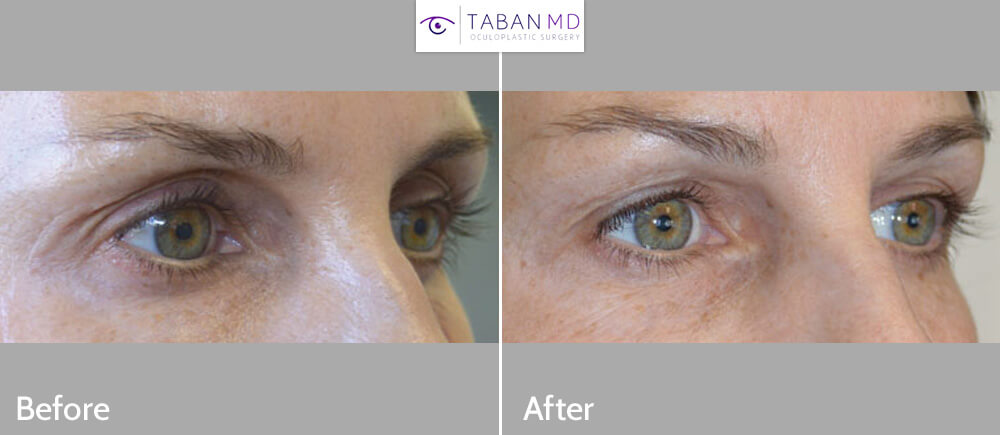 Middle age woman, who did NOT want surgery, complained of eyelid aging with hollowness around eyes giving sunken, aged eye appearance with dark circles and excess skin folds. She underwent NON-SURGICAL eyelid lift using eyelid FILLER injection to give more youthful results. Belotero was injected in upper eyelids and brows while Restylane was injected under eyes. Before and 1 month after eyelid filler injection photos are shown. She would benefit from conservative upper blepharoplasty to remove loose skin in the future.