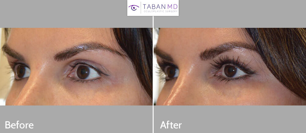 Young woman, complained of hollow, sunken eyes and dark circles. She has good skin quality. She underwent NON-SURGICAL FILLER injection around eyes to give more youthful eye appearance. Belotero was injected in upper eyelids and brows while Restylane was injected in lower eyelids. Before and 1 month after eyelid filler injection photos are shown.