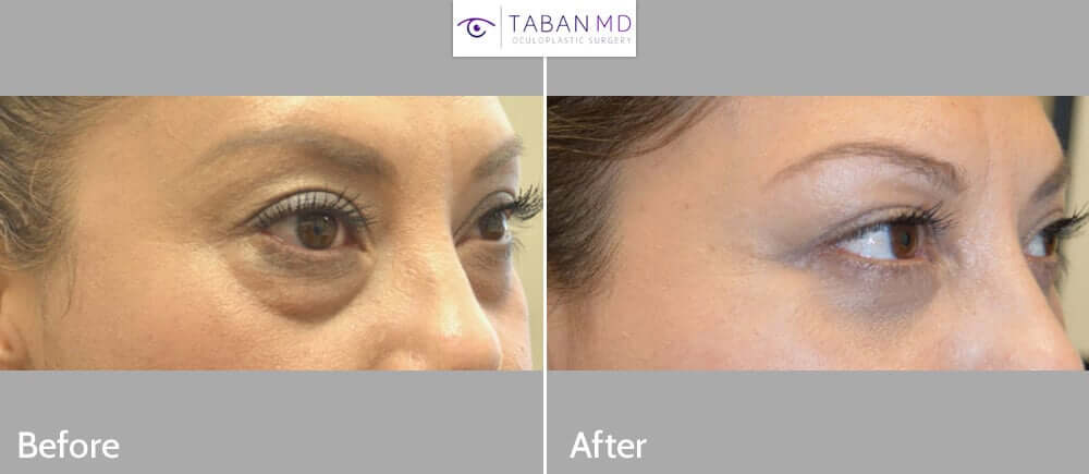 39 year old female, complained under eye bags and dark circles, looking tired. She underwent transconjunctival lower blepharoplasty with fat redraping and skin pinch excision, to improve both the eye bags and dark circles (latter due to hollowness from tear trough deformity). Before and 2 months after cosmetic lower eyelid surgery photos are shown.