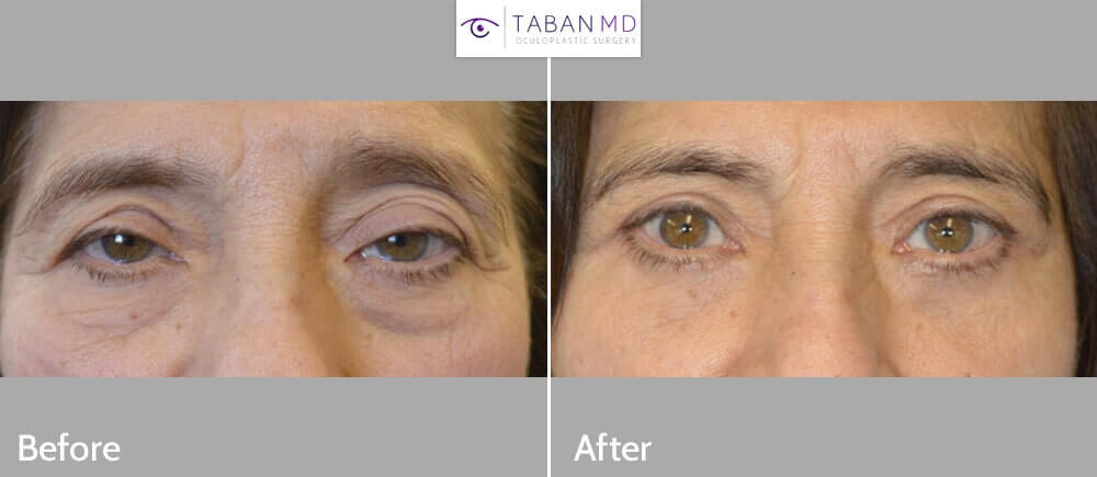 75 year old female, with tired older eye appearance with droopy upper eyelids and eye bags, underwent droopy upper eyelid (ptosis) repair and upper blepharoplasty and lower blepharoplasty (transconjunctival with fat repositioning and skin pinch excision). Before and 3 months after eyelid surgery photos are shown. Note improved rested eye appearance with natural results.
