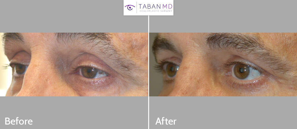 Middle age man, complained of looking tired and older. He underwent cosmetic eyelid procedures including lower blepharoplasty (transconjunctival with fat repositioning) to correct under eye bags, male upper blepharoplasty (skin only), and upper eyelid ptosis (droopy eyelid; eyelid lift) surgery. Before and 3 months after photos are shown, with natural results.